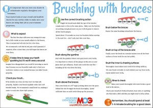 Brushing-with-braces-guide